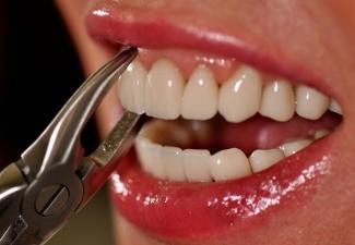 Umrtvení zubu cena