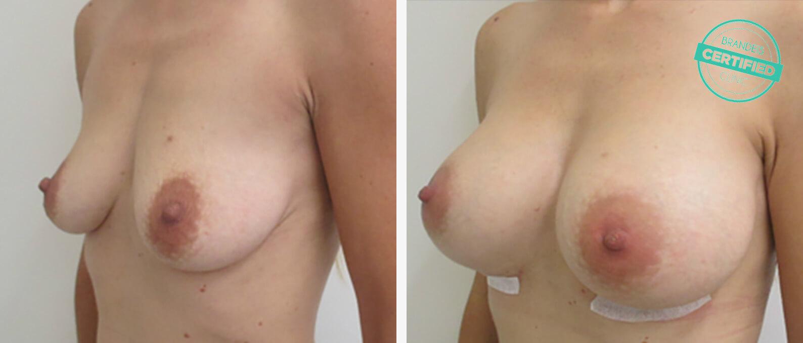 Wie die Brust schneller zu vergrössern