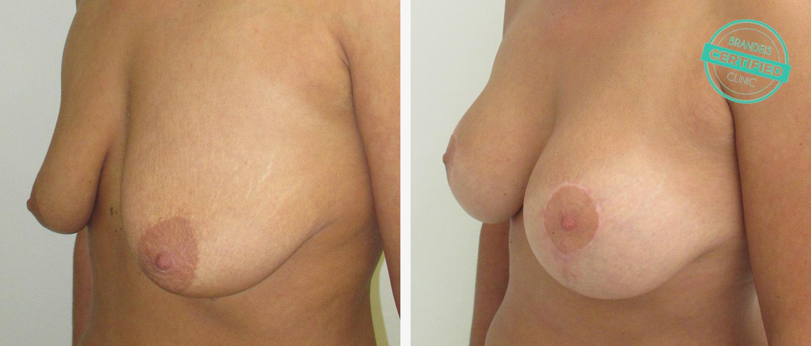 Penis Erweiterung plastische Chirurgie