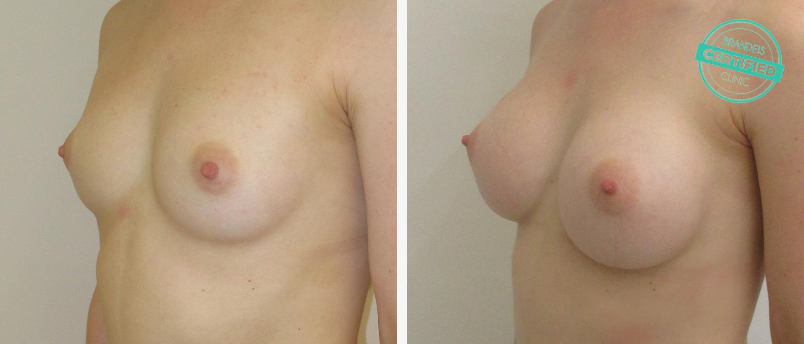 Plastische Kosmetische Chirurgie Gesicht Belgien