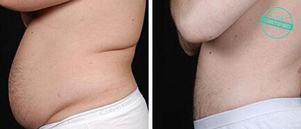 Vorher Und Nachher Fettabsaugung Brandeis Clinic